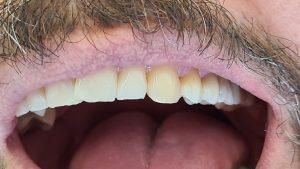 Nacementovaný bočný mostík na zuby