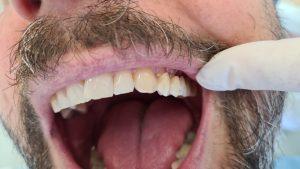 Zubný mostík - nasádzanie
